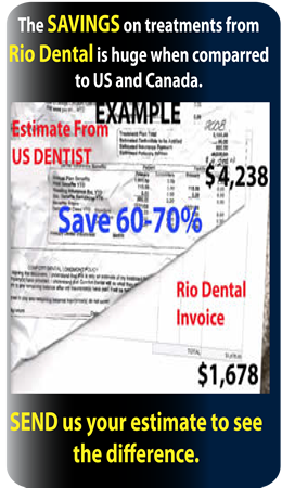 mexico dentist and dental treatment savings
